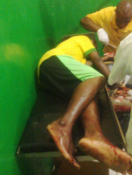 Iner Sekenil (pelajar) korban penembakan militer indonesia di yahukimo