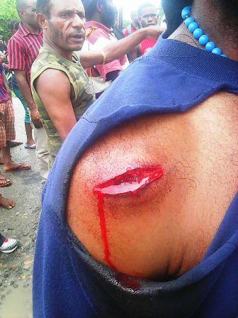 Isay Dapla Korban penembakan gabungan militer nkri 19 maret 2015