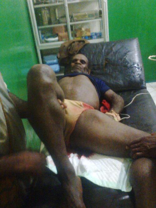 Obang Sekenil korban penembakan gabungan militer ndonesia 20 maret 2015 (meninggal)