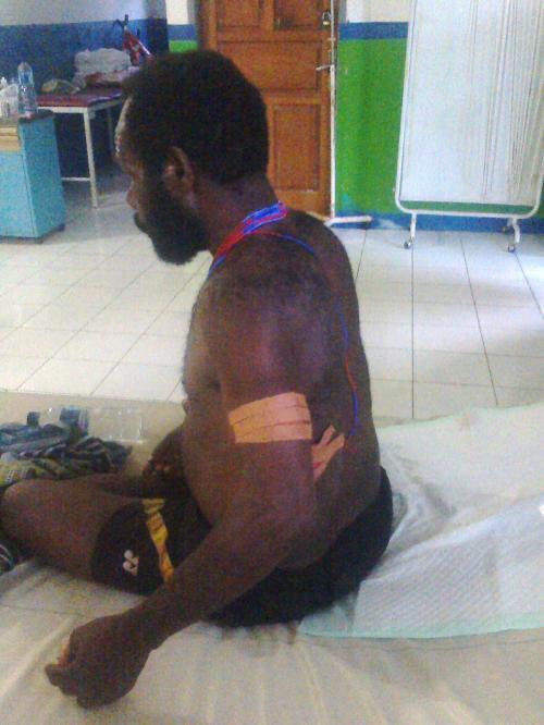 Simson Giban korban penembakan oleh militer nkri di yahukimo